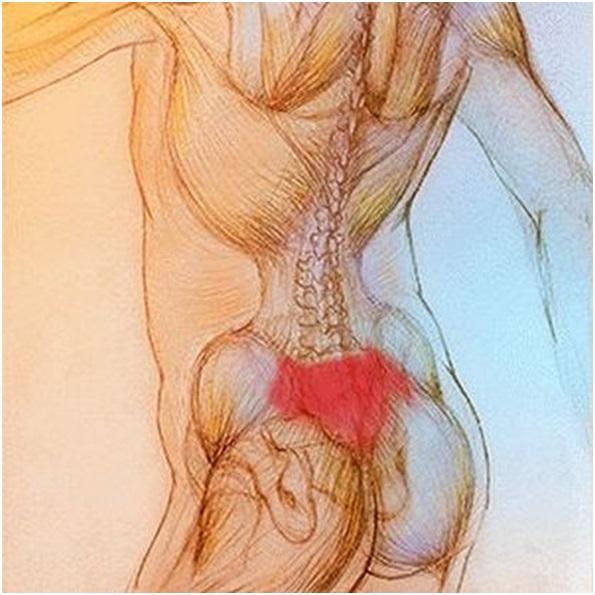 Боль в крестце при простатите лечение простатит с ионофорезом